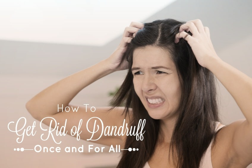 How to Get Rid of Dandruff